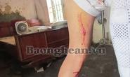 Heo rừng tấn công, hai người bị thương nặng