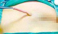 """Phẫu thuật cắt """"đuôi"""" 6 cm cho bé gái"""