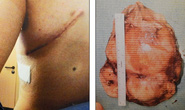 Suýt nổ tim vì khối u bằng quả bưởi
