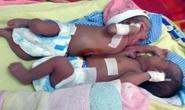 Mổ tách thành công 2 bé sinh thường dính nhau