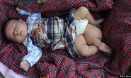 Bé sơ sinh 3 chân bị bỏ rơi