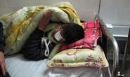 Nổ bình gas mini, một thanh niên có thể bị mù 2 mắt