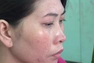 Vụ chặt đầu chồng: Người vợ không khóc nhưng nhiều lần ngất xỉu
