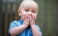Bé trai không thể chớp mắt vì bị bệnh vảy cá
