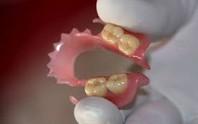 Nuốt phải răng giả, một bệnh nhân suýt chết