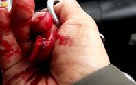 Nhà báo điều tra bị đánh dã man