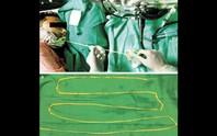 Bác sĩ kéo sán dây 1,8 m ra khỏi miệng bệnh nhân