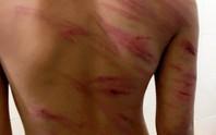 Bắt giam cha dượng bạo hành dã man con riêng của vợ
