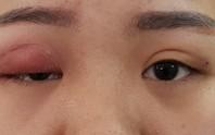Kim khâu gãy nằm trong mắt lúc nhấn mí