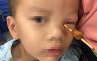 Que tăm xuyên vào hốc mắt bé 4 tuổi