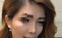 Mở băng sau cắt hàm, nữ công nhân không tin vào gương mặt mình