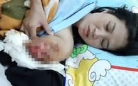 Mổ lần 2 cho cô giáo chạy 130km bị tai nạn phải cắt bỏ cánh tay