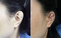 Phẫu thuật cho người phụ nữ 34 tuổi có vành tai khác thường