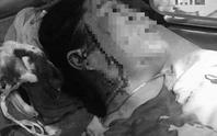 Bình Thuận: Hẹn đánh ghen, một phụ nữ bị đâm rách mặt