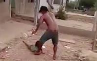 Bắt giam kẻ hành hạ dã man con gái 6 tuổi gây phẫn nộ
