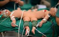 CLIP: Tách rời hoàn toàn 2 bé song sinh Trúc Nhi - Diệu Nhi