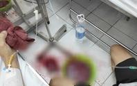 Đua thời gian với ca ộc máu dữ dội tại giường bệnh