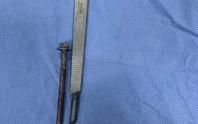 Người đàn ông đến bệnh viện với chiếc ốc vít dài 6cm xoáy vào giữa dương vật