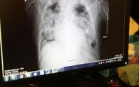 Bệnh nhân xui xẻo, chết vì ghép phổi chứa virus SARS-CoV-2