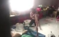 Bạo hành bé trai ở Bình Dương: Dù tỉ lệ thương tật ít, vẫn phải xử lý nghiêm