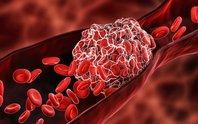 Hình thành cục máu đông bất thường sau tiêm vắc-xin Covid-19?