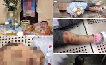 Vụ bé gái 3 tuổi tử vong: Chủ tịch Hà Nội Nguyễn Đức Chung chỉ đạo điều tra làm rõ