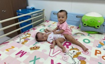 Cận cảnh 2 bé gái song sinh dính nhau: Từ phút ra đời đến ca mổ tách lịch sử