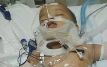 Rớt từ 11 tầng, bé 15 tháng tuổi sống sót kỳ diệu
