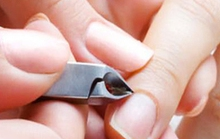 Cắt móng tay, móng chân hàng ngày: Hại nhiều hơn lợi