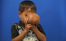Trả nụ cười cho cậu bé mang khối u khổng lồ trên mặt
