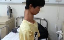 Thiếu niên người Trung Quốc có cổ dài bất thường