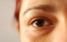 Vì sao mắt mau có cườm?