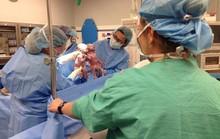 Cặp song sinh nắm tay nhau khi vừa chào đời