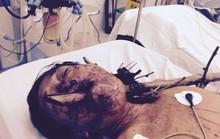 Cứu sống nạn nhân bị cây tre đâm xuyên cổ họng