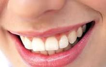 Người Việt hào phóng nụ cười nhưng không biết cười