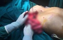 Anh công nhân bị lưỡi cưa máy chém lòi ruột