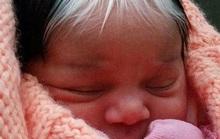 Kỳ lạ cô bé sinh ra với hai màu tóc và hai màu da