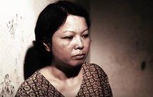 Cô giáo bị ung thư phổi truyền thông về tác hại thuốc lá