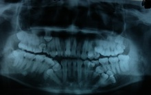 Nam thanh niên mọc thừa tới 13 chiếc răng