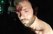 Thổ Nhĩ Kỳ: Tóm biệt đội tử thần âm mưu bắt cóc TT Erdogan