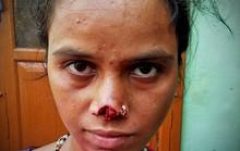 Vợ bị chồng cắt mũi vì không trả đủ tiền hồi môn