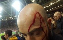 Fan Chelsea bị đánh đổ máu ở trận thua West Ham