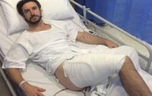 Bỏng nặng vì iPhone trong túi quần phát nổ