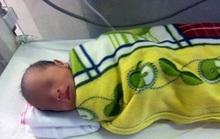 Trẻ sơ sinh vừa mới cắt rốn bị bỏ rơi trong đêm khuya