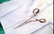 Phẫu thuật lấy chiếc kéo bỏ quên trong bụng bệnh nhân 18 năm