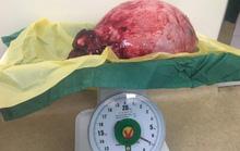 Nghĩ là mang thai, bóc ra khối u 12 kg