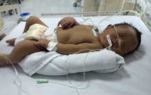 Uống nước thằn lằn và thuốc tàu, bé 20 ngày tuổi tử vong