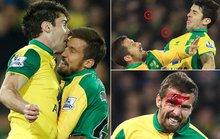 Hôn nhau trên không, cầu thủ Norwich kẻ vỡ đầu người gãy răng!