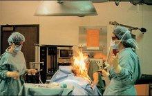 Bệnh nhân cháy nửa người vì … trung tiện trên bàn mổ