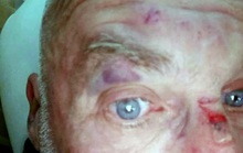 Công an điều tra vụ du khách Hà Lan bị hành hung ở Sa Pa